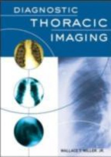 Обложка книги  - Diagnostic Thoracic Imaging