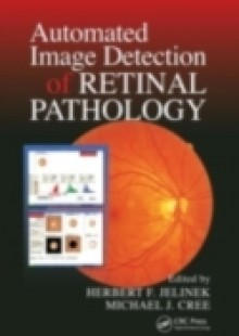 Обложка книги  - Automated Image Detection of Retinal Pathology