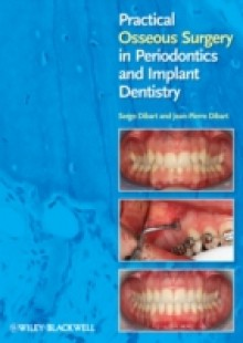 Обложка книги  - Practical Osseous Surgery in Periodontics and Implant Dentistry